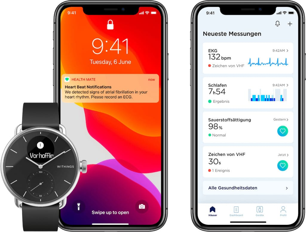Withings ScanWatch und Smartphone App